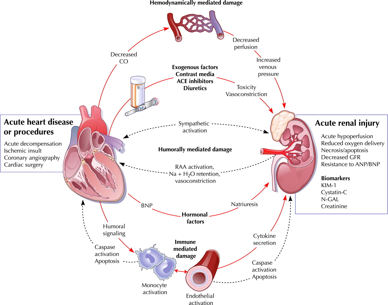 Cardiorenal Syndrome Quest Ce Que Cela on hepatorenal syndrome diagram