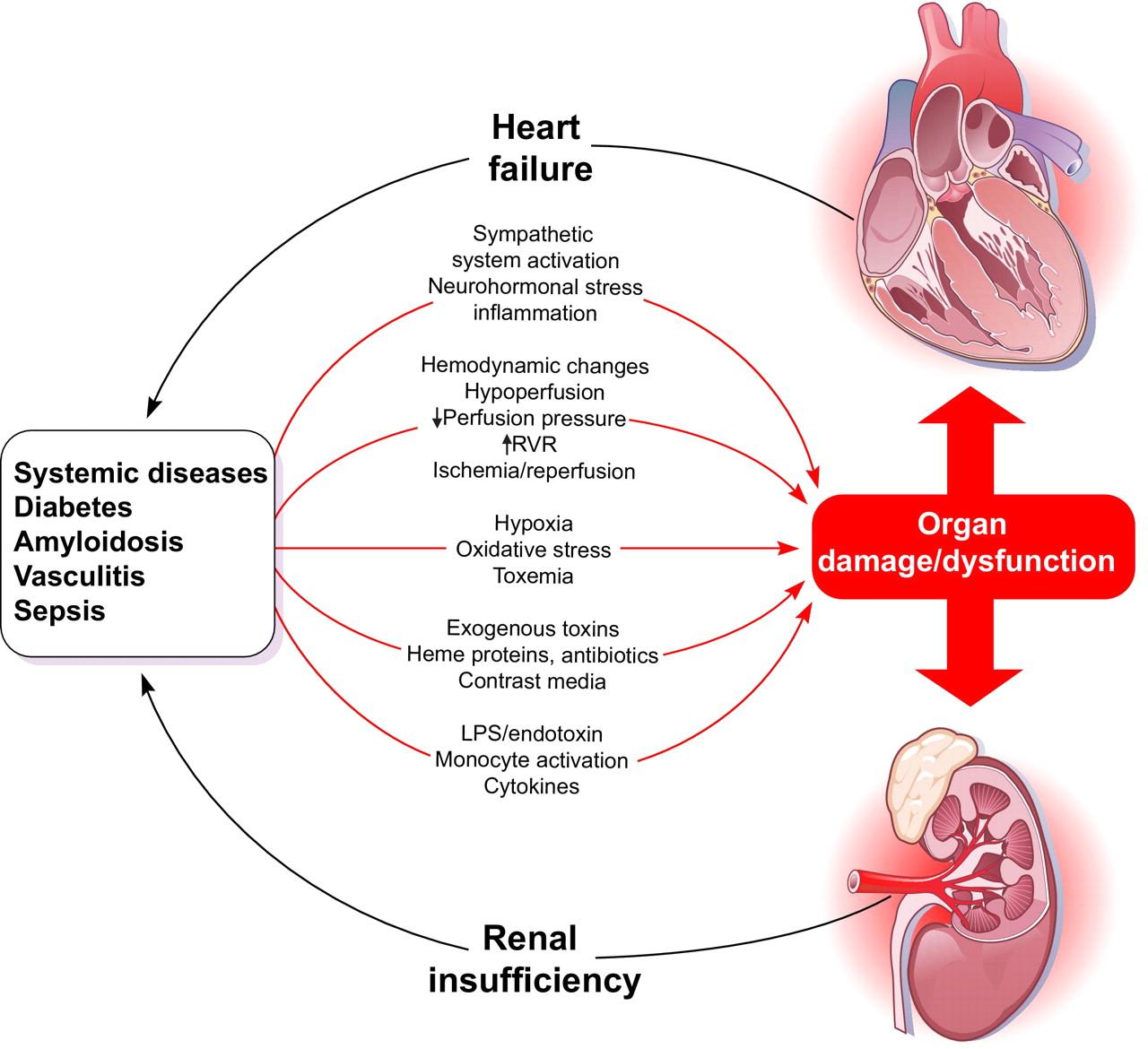 Cardiorenal Syndrome Quest Ce Que Cela