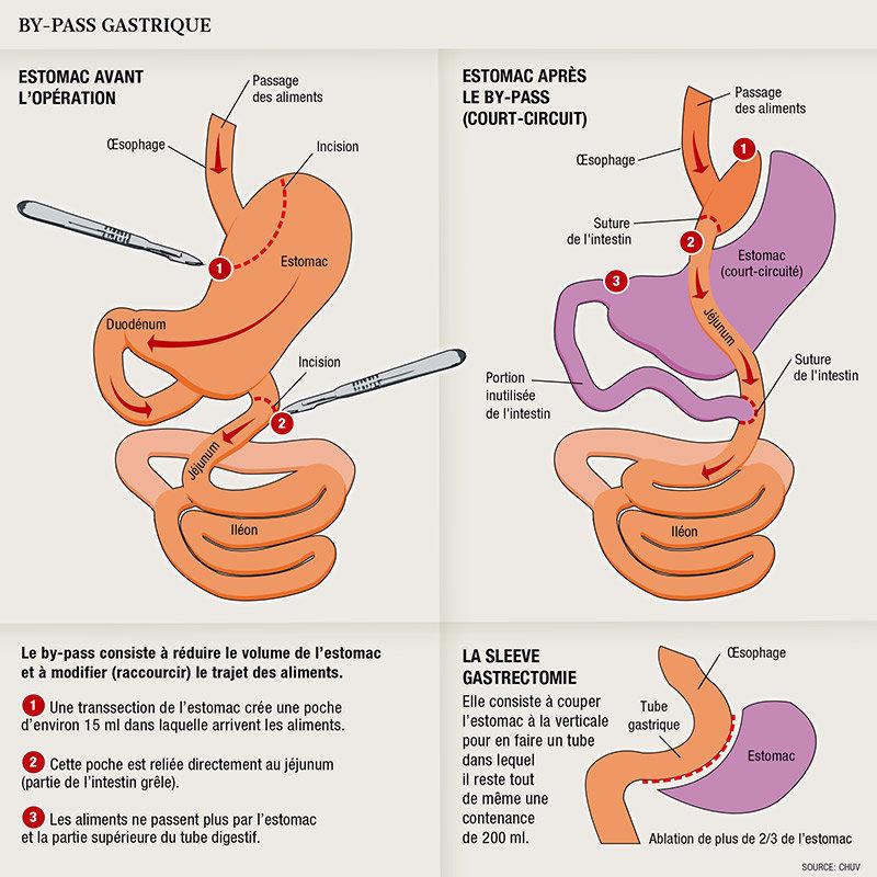 Tiré de www.planetesante.ch (Traiter l'obésité avec la chirurgie)